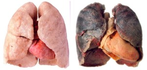 płuca-palacza-papierosów